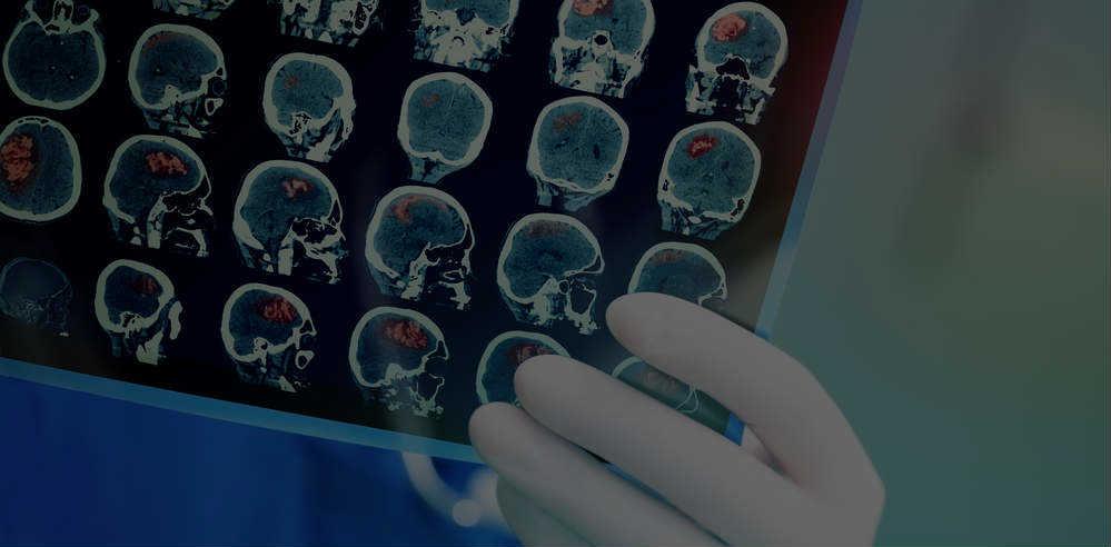 دكتور ابراهيم عبد المحسن إستشارى جراحة المخ والأعصاب والعمود الفقرى