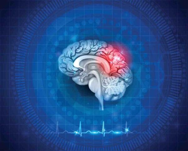 علاج السكتة الدماغية