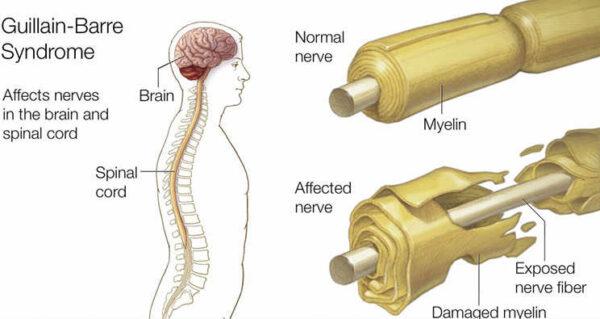 متلازمة التهاب الأعصاب الحاد
