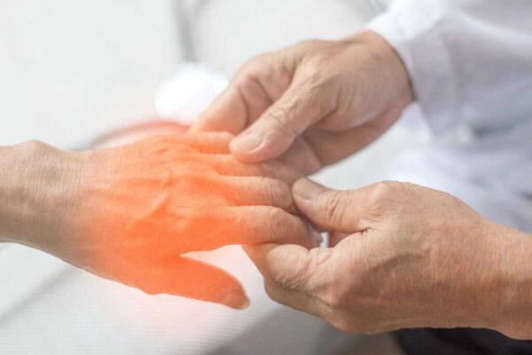 مدة علاج التهاب الاعصاب الطرفية